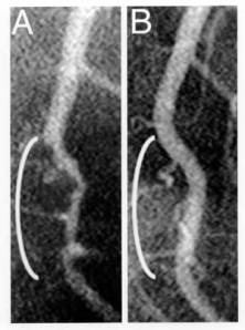 Coronary angiograms of the distal left anterior descending artery before (left) and after (right) 32 months of a plant-based diet without cholesterol-lowering medication, showing profound improvement.