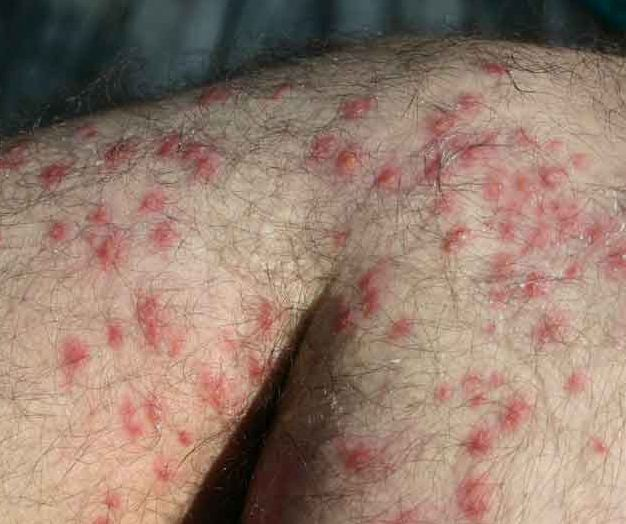 What Is the Best Treatment for Ant Bites? (with pictures)