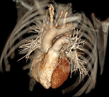 Toshiba_Cardiac CT 2